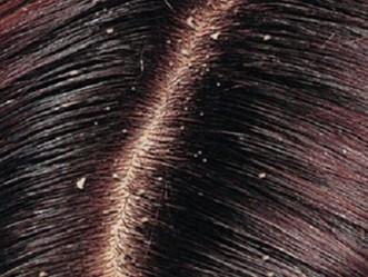Perdita di capelli di diffusione a uomini che questo